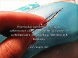Heart Angioplasty - Does Heart Angioplasty Work?