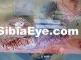 Cataract Eye Surgery Boynton, Boynton Beach Cataracts, Boynton Eye Care