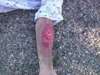 Conducción segura de motocicletas: Lesiones y quemaduras