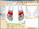 VisuREFLEX logiciel reflexologie plantaire programme