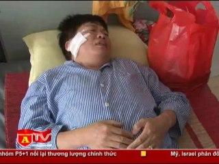 ANTÐ - Phó Giám đốc CATP Hà Nội thăm hỏi CBCS bị tấn công khi làm nhiệm vụ