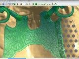Logiciel DIGISTELL pour la création de châssis/squeletté pour les prothésistes dentaires (Partie 2 : Modélisation de la maquette du châssis/stellite)