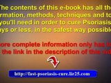 psoriasis remedies - home remedies for psoriasis - remedies for psoriasis
