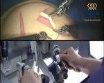 Robotik cerrahi (da vinci robotik cerrahi) - Koru Hastanesi www.koruhastanesi.com