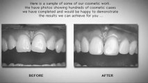 Dentists Implants Orange Veneers Dentures Cosmetic Dentistry Invisalign Dental Services