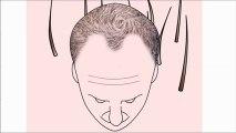 FUE Saç Ekimi - Rota Hairtrans Saç Ekim Merkezi İstanbul