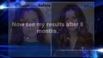 Mira hair oil testimonials -  REAL Mira hair oil testimonial - Hair loss solutions