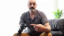 Nigel Ackland et son bras Bionic Terminator