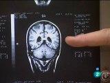 Esquizofrenia: Hipotesis virica (E. Fuller Torrey)