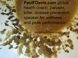 Disease Prevention Speaker - East Africa Parasites - Parasite Cleanse