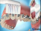 Brossage des dents avec des brackets