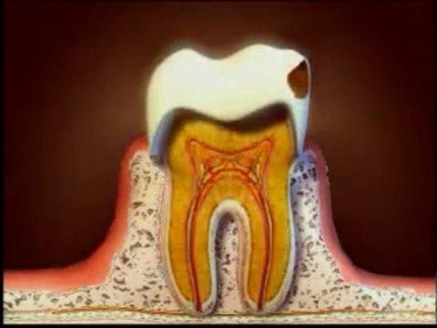 dentiste Caries et soins des caries explication