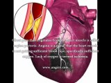 Angina Pectoris With Myocardial Infarction - What Is The Best Treatment For Angina Pectoris With Myocardial Infarction?