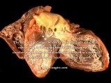 Coronary Artery Disease vs Myocardial Infarction - What Is The Best Treatment For Coronary Artery Disease And Myocardial Infarction?