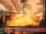 Çalışan Kalpte Bypass - Çay Tv - Op. Dr. Mahmut Akyıldız