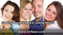 Dental Implants Long Beach-Cosmetic Dentist Long Beach-Dentist Long Beach