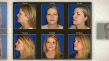 Inland Empire Cosmetic Surgery - 888.779.5912 Call Now! Ben J. Childers, MD, FACS