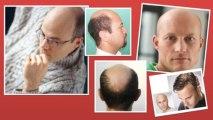 Video milagro para el cabello - remedios caseros para la caida del cabello
