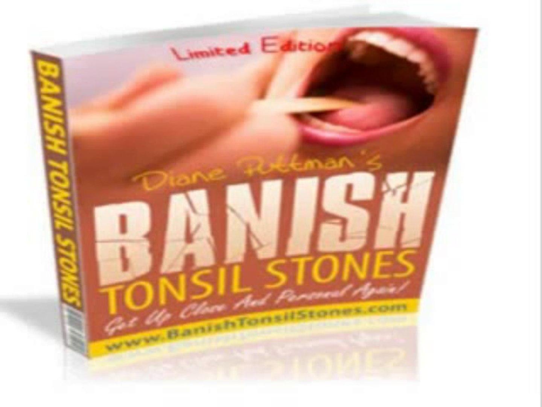 Banish Tonsil Stones Book Review | Banish Tonsil Stones Guide
