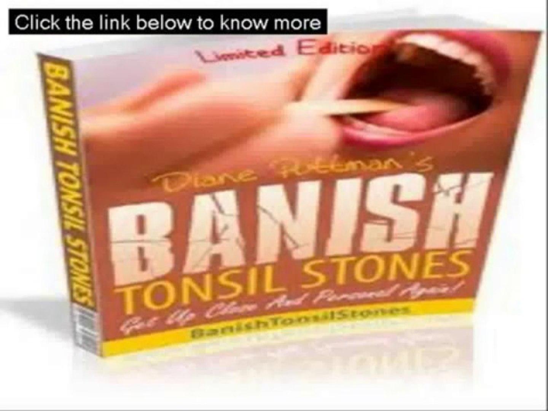 Banish Tonsil Stones Guide - Banish Tonsil Stones Free Download