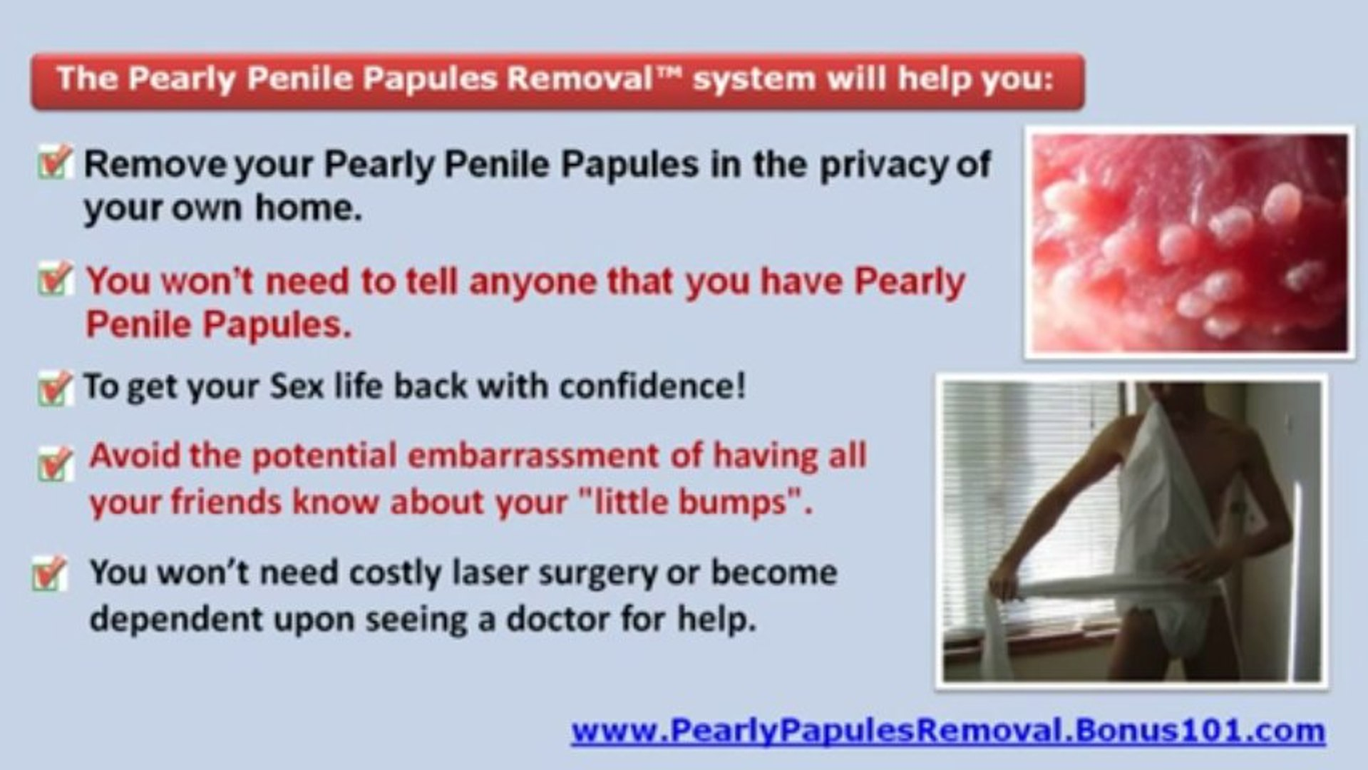 Papules on penile glans pearly 3 Ways