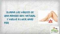 VARICES NUNCA MAS | LA SOLUCION NATURAL PARA ELIMINAR LAS VARICES