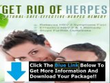 Fastest Way To Get Rid Of Herpes Outbreak + Get Rid Of Herpes Outbreak Fast