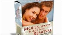 Moles Warts And Skin Tags Removal Review | Remove Moles, Warts & Skin Tags