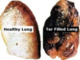 Lung Detoxification - Clean Your Lungs And Quit Smoking Review + Bonus