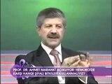 hemoroid basur bitkisel tedavi-basur nasıl geçer tedavi edilir Ahmet Maranki
