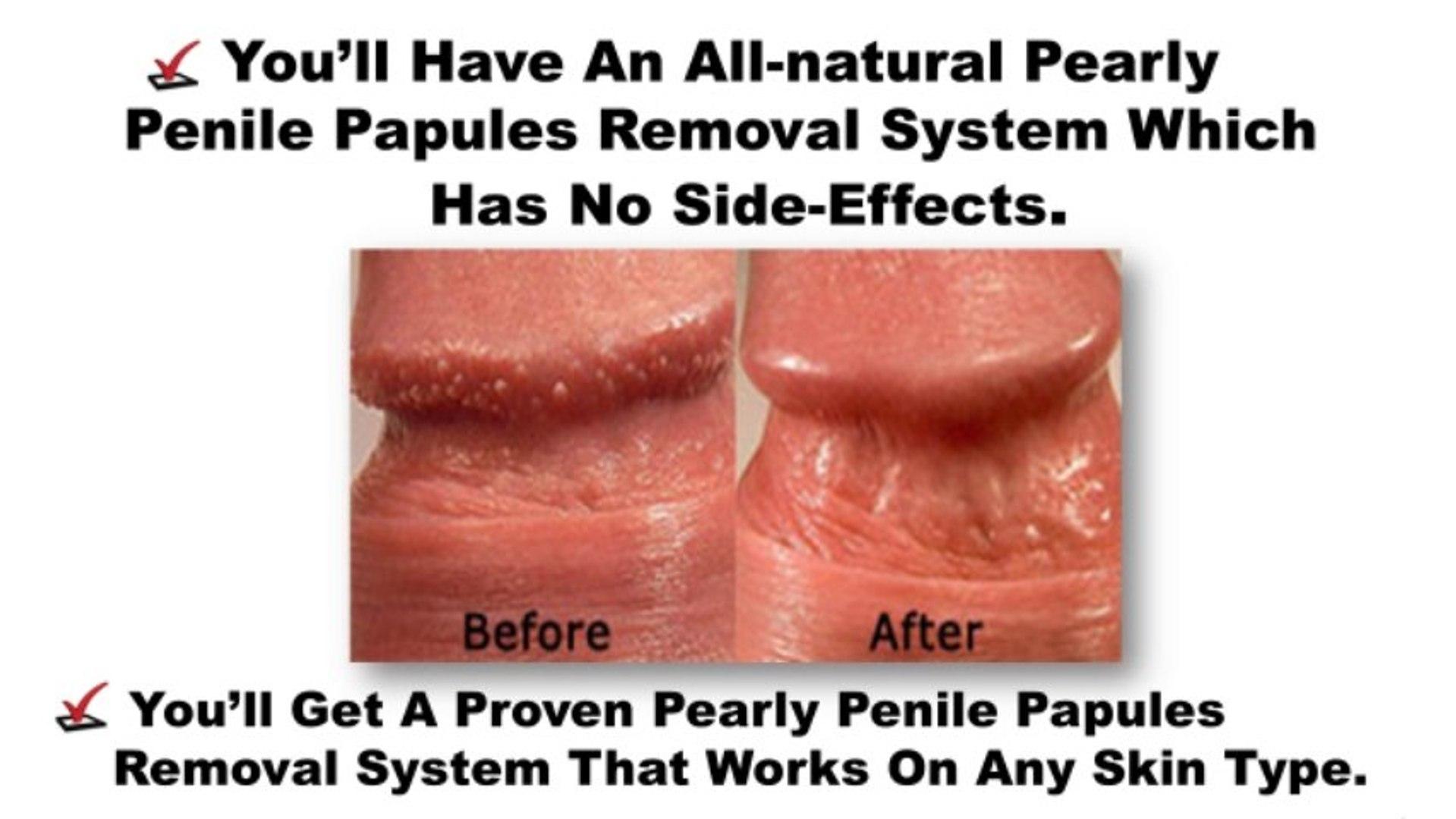Penis papules in 3 Ways