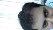 Follicular Unit Transplant (FUT) Hair Transplant Surgery by Satya Hair Transplantation Clinic