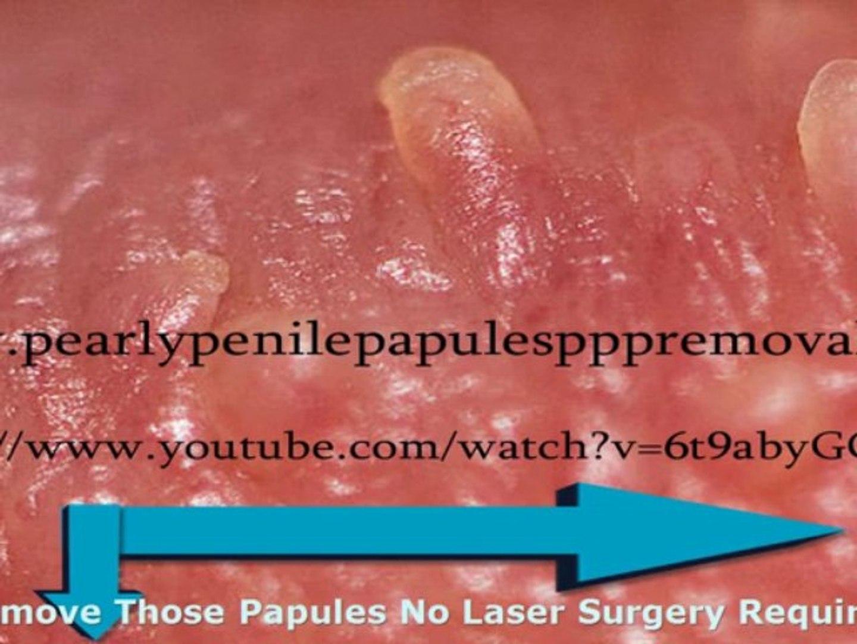 Away penile papules go How long