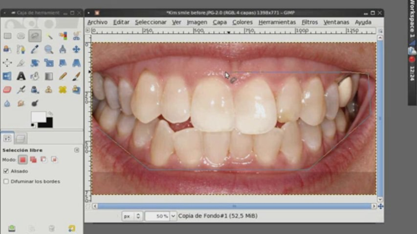 GimpPodcast #3: Teeth Witening