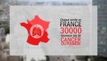 Ma santé en question : Dépistage et prévention du cancer du poumon : quoi de neuf ?