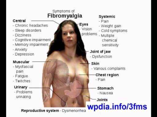 FIBROMYALGIA – SYMPTOMS & TREATMENT