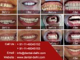 Dental Clinic in New Delhi, Dentist in South Delhi, Dental Implants Clinic in Delhi