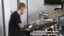 Disabled Drummer (hand missing) play with a Robotic Drum Prosthesis