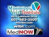 Treatments for Varicose & Spider Vein by Mississippi Vein Institute