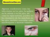 Como Quitar Las Manchas en los Ojos: Como Se Pueden Quitar Las Manchas en los Ojos