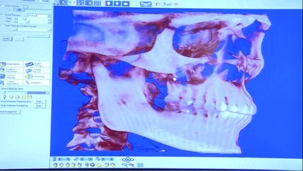 Wisdom Tooth Extraction - Lincoln