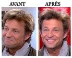 Laurent Delahousse: son secret de coiffure enfin révélé