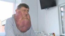 Les docteurs retirent une tumeur de 6 kilos
