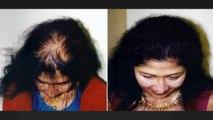 hair growth products, hair growth shampoo, hair implants, Dr. Ari Chennai, Dr. Ari Arumugam, Hari Transplant Chennai