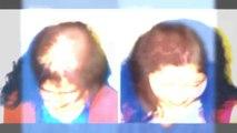 hair implants - hair loss - hair loss causes - Plastic Surgery Chennai - Dr. Ari Chennai - Dr. Ari Arumugam