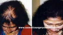 hair fall - hair fall solution - hair fall treatment - Dr  Ari Arumugam - Hari Transplant Chennai - Dr  Ari Chennai