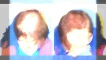 hair loss shampoo - hair loss treatment - hair loss women - Hari Transplant Chennai - Dr. Ari Chennai - Dr. Ari Arumugam