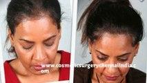 hair loss shampoo - hair loss treatment - hair loss women - Dr. Ari Chennai - Dr. Ari Arumugam - Plastic Surgery Chennai