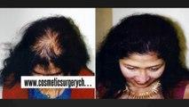 hair fall - hair fall solution - hair fall treatment - Plastic Surgery Chennai - Dr  Ari Chennai - Dr  Ari Arumugam