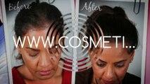 hair fall treatment - hair growth - hair growth products - Dr. Ari Arumugam - Plastic Surgery Chennai - Dr. Ari Chennai
